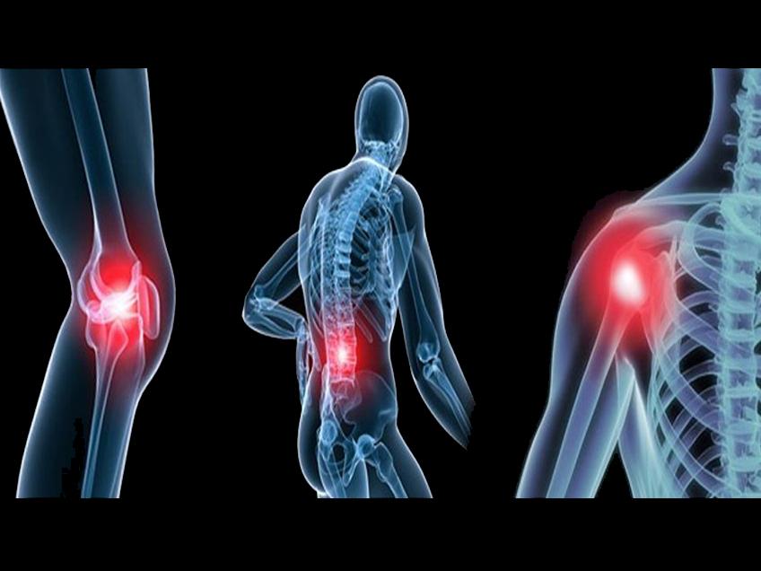 L'arthrose et les maladies semblables ou corollaires